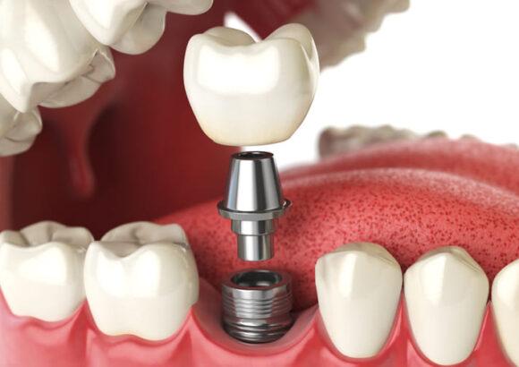 вставка зуба