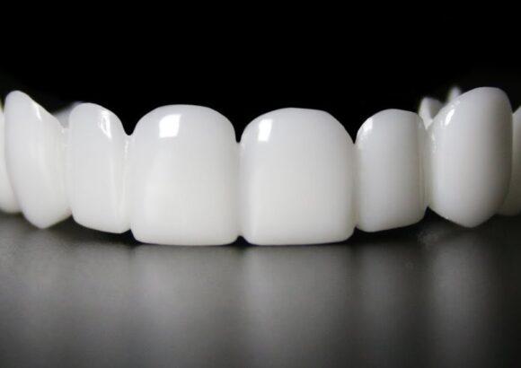 belyje_zuby