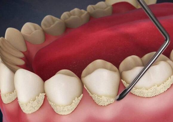 зубы во время чистки