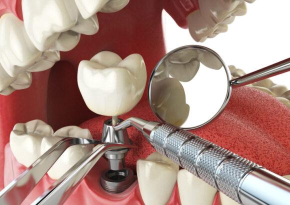 имплантация зубов методы