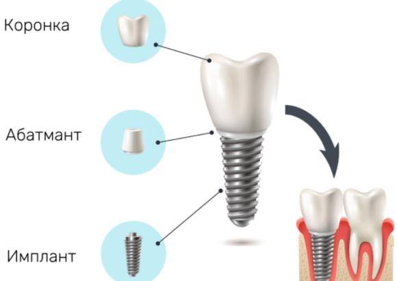 структура имплантов
