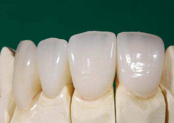 Безметалловые зубы