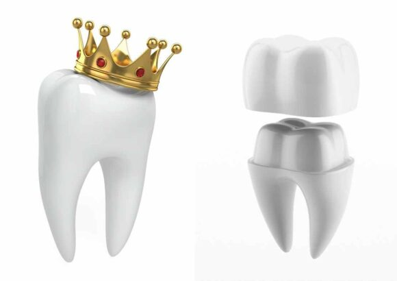 несъемные протезы зубов цена