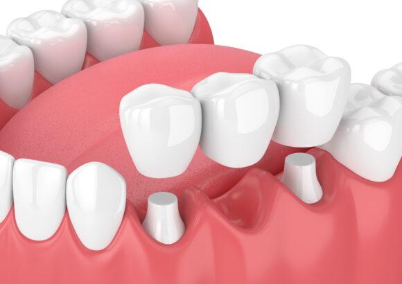 несъемное протезирование зубов в минске