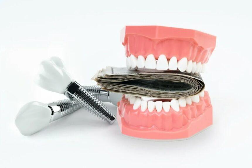 Имплантация зубов в Белоруссии: цены