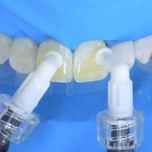 Флюороз зубов: причины, стадии, лечение