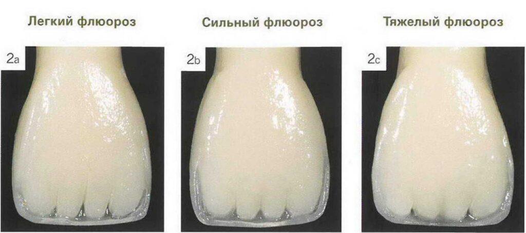 Стадии развития флюороза